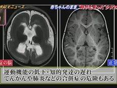 """ザ!世界仰天ニュース """"時が止まった少女達""""…人体の不思議SP! 20160127"""