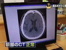 総合診療医 ドクターG「風呂あがりに倒れた」 20160128