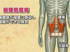 総合診療医 ドクターG「熱が出て だるい」 20160204