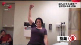クローズアップ現代+「脳がよみがえる!?再生医療大国・日本の逆襲」 20170420