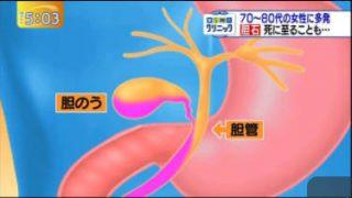 ゆうがたサテライト【5時の医療特集は胆石】 20170626